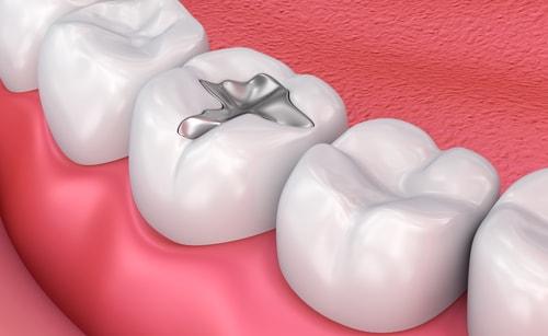 plomba w zębie